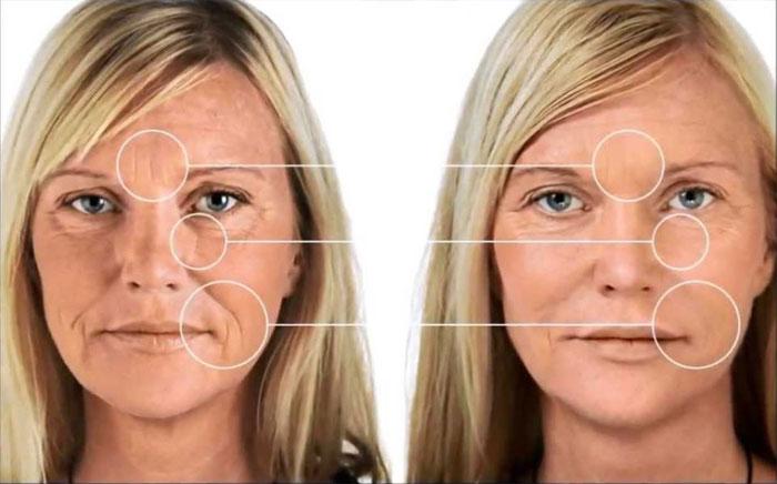 Differenze tra acido ialuronico e collagene