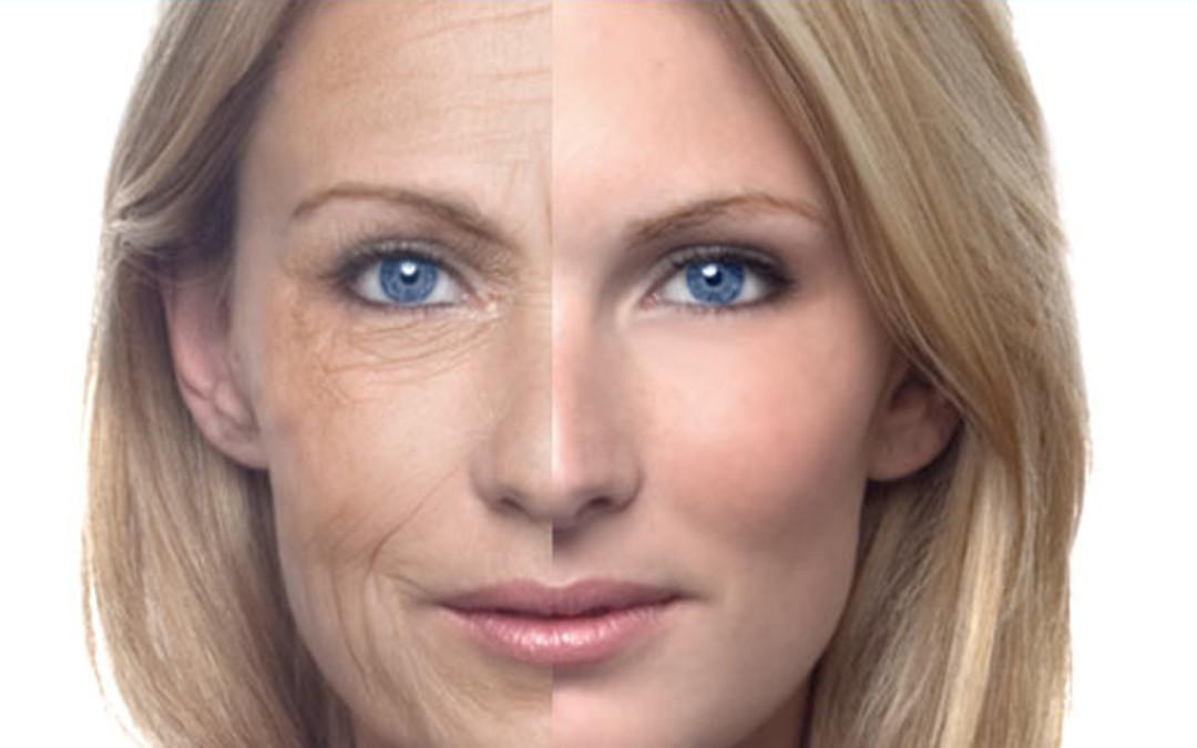 Fotoinvecchiamento della pelle - Dott.ssa Roberta Antonutti 55aea00817f9