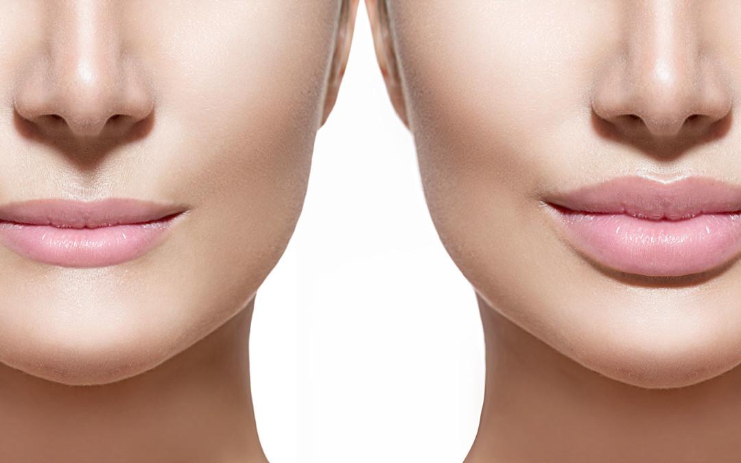 Medicina Estetica: Labbra