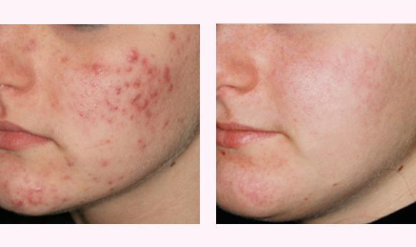 Trattamento acne con Luce Pulsata in Medicina Estetica