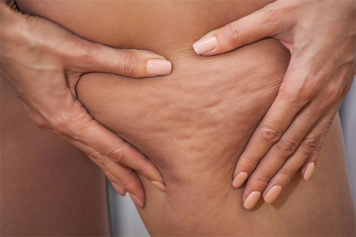 Come eliminare la cellulite: rimedi efficaci