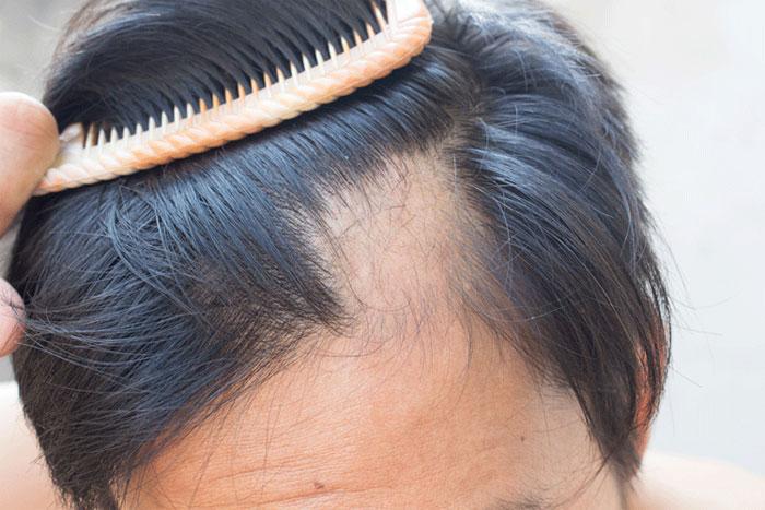 Caduta dei capelli: i rimedi