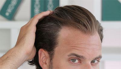 Mesoterapia capelli