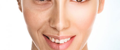 Ringiovanimento del viso
