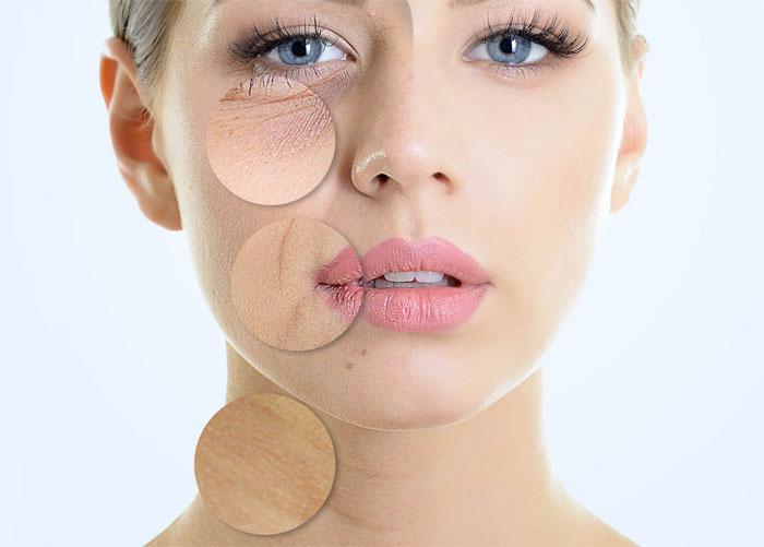 Ringiovanimento del viso e i trattamenti