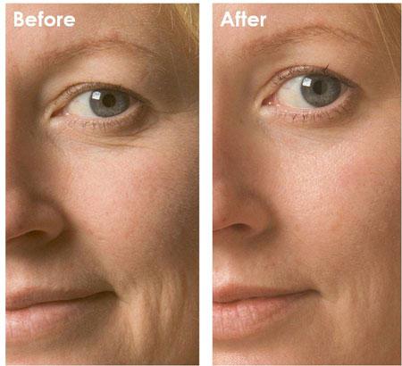 effetti mesoterapia pelle